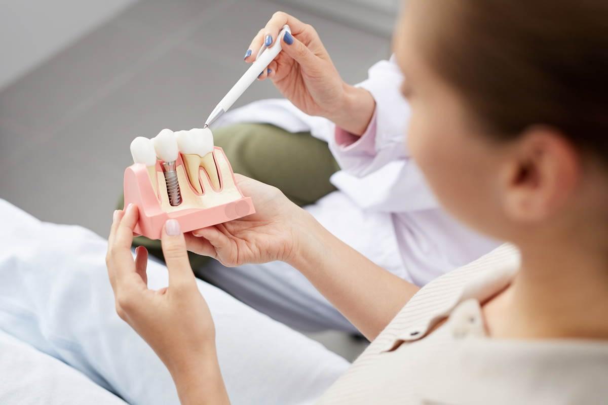 Explaining Tooth Implantation