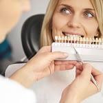 Part of dentist choosing color teeth from palette